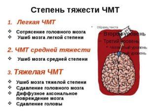 Зчмт сотрясение головного мозга степень тяжести вреда здоровью