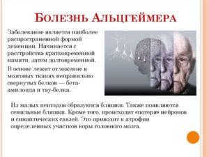 Различия между деменцией и альцгеймером