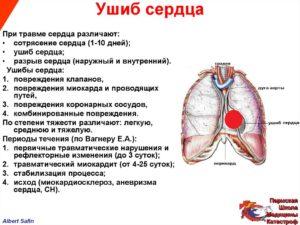 Резкий удар в область сердца при дтп