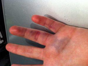 Страховка  если сломал палец на руке